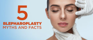 5 Blepharoplasty Myths and Facts