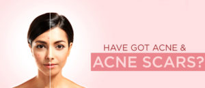 acne and scar blog banner