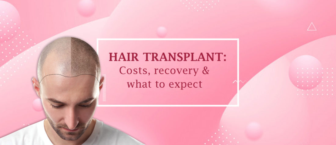 Everything You Need To Know Before You Go For Hair Transplant (Explained)