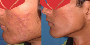 acne-before-after-3-nishtha-wellness