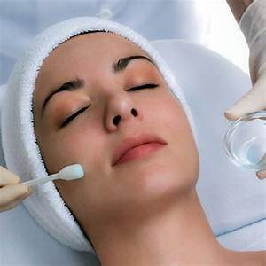 chemical-peel