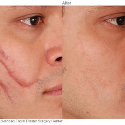 scar removal on face