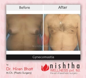 before-affter-gynecomastia-case-4-front-view-nishtha-wellness