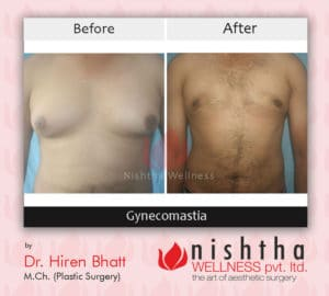 before-affter-gynecomastia-case-5-front-view-nishtha-wellness