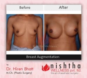breast-augmentation-before-after-case-1-front-view-nishtha-wellness
