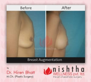 breast-augmentation-before-after-case-4-side-view-nishtha-wellness