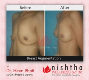 breast-augmentation-before-after-case-4-side-view-nishtha-wellness1