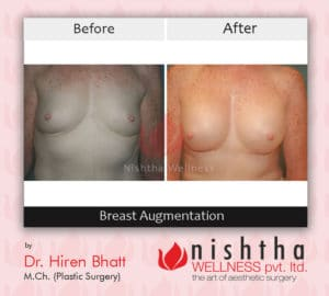 breast-augmentation-before-after-case-5-front-view-nishtha-wellness
