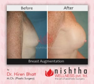 breast-augmentation-before-after-case-5-side-view-nishtha-wellness