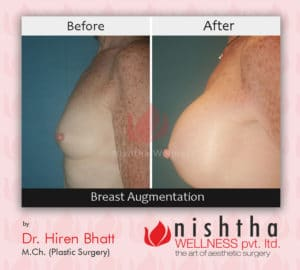 breast-augmentation-before-after-case-5-side-view-nishtha-wellness1