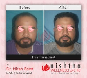 hair-transplant-before-after-case-2-front-view-nishtha-wellness