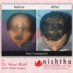 hair-transplant-before-after-case-2-top-view-nishtha-wellness