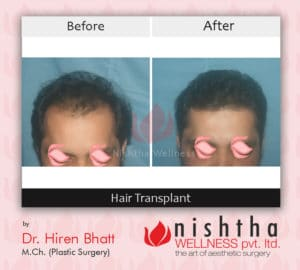 hair-transplant-before-after-case-7-side-view-nishtha-wellness