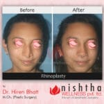 rhinoplasty-before-after-case-1-front-view-nishtha-wellness