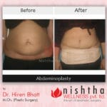 before-after-abdominoplasty-case-2-front-view-nishtha-wellness