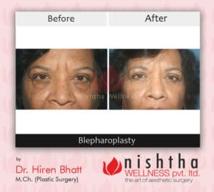 blepharoplasty-before-after-case-1-front-view-nishtha-wellness