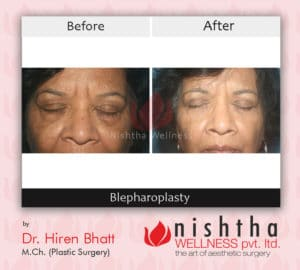 blepharoplasty-before-after-case-1-front-view-nishtha-wellness1