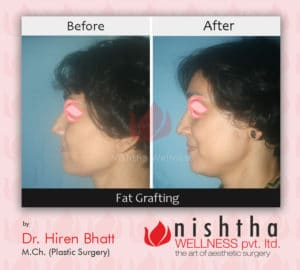 fat-grafting-before-after-case-1-left-side-view-nishtha-wellness