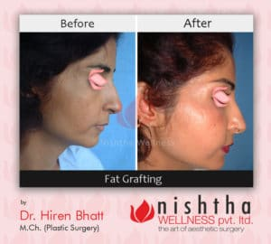 fat-grafting-before-after-case-2-right-side-view-nishtha-wellness