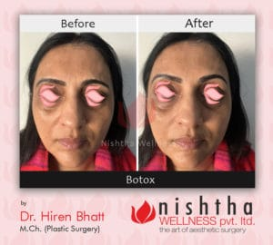 botox-before-after-case-1-front-view-nishtha-wellness