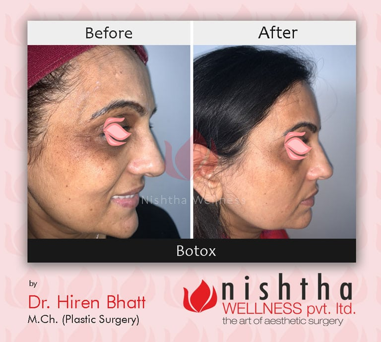 botox-before-after-case-1-right-side-view-nishtha-wellness
