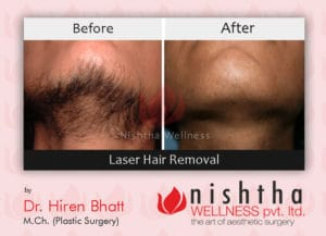 laser-hair-removal-before-after-case-1-bottom-view-nishtha-wellness